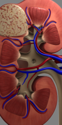 Kidney Tumor Animation